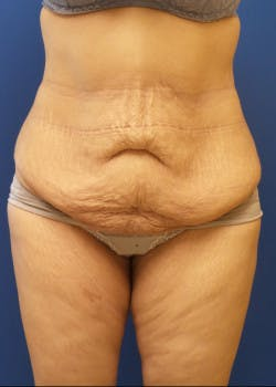 Tummy Tuck Gallery - Patient 46612599 - Image 1