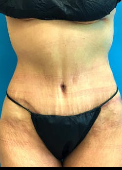 Tummy Tuck Gallery - Patient 46612599 - Image 2