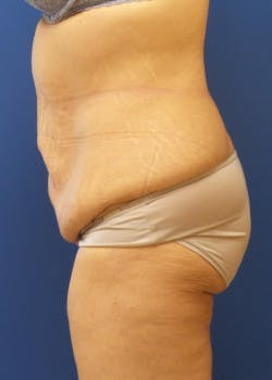 Tummy Tuck Gallery - Patient 46612599 - Image 3