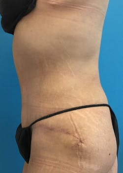 Tummy Tuck Gallery - Patient 46612599 - Image 4
