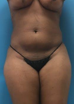 Brazilian Butt Lift Gallery - Patient 46612607 - Image 2