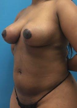 Brazilian Butt Lift Gallery - Patient 46612607 - Image 4