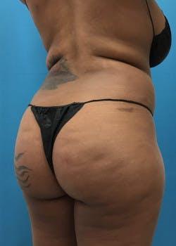 Brazilian Butt Lift Gallery - Patient 46612607 - Image 5