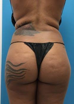 Brazilian Butt Lift Gallery - Patient 46612607 - Image 7