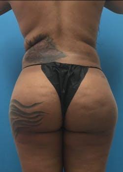 Brazilian Butt Lift Gallery - Patient 46612607 - Image 8