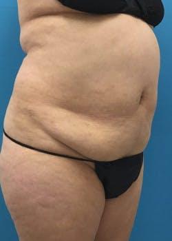 Brazilian Butt Lift Gallery - Patient 46612609 - Image 1