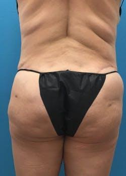 Brazilian Butt Lift Gallery - Patient 46612611 - Image 1