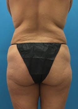 Brazilian Butt Lift Gallery - Patient 46612615 - Image 1
