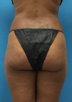Brazilian Butt Lift Gallery - Patient 46612617 - Image 1