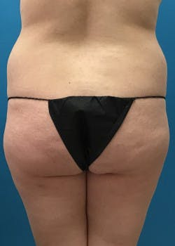 Brazilian Butt Lift Gallery - Patient 46612624 - Image 1