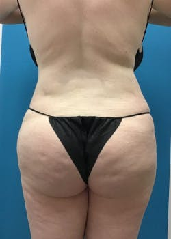 Lower Body Lift Gallery - Patient 46612676 - Image 2