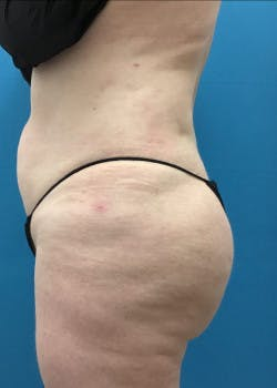 Lower Body Lift Gallery - Patient 46612676 - Image 4