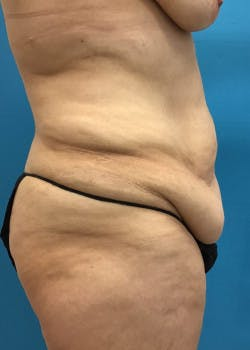 Lower Body Lift Gallery - Patient 46612707 - Image 1