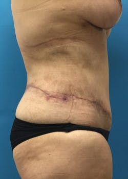 Lower Body Lift Gallery - Patient 46612707 - Image 2