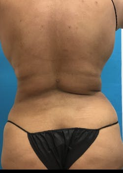 BodyTite Gallery - Patient 46612723 - Image 8