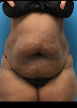 BodyTite Gallery - Patient 46612792 - Image 1