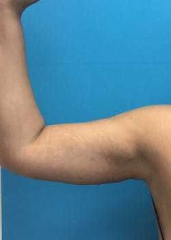 Arm Lift Gallery - Patient 46612881 - Image 2