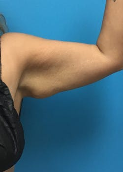 Arm Lift Gallery - Patient 46612881 - Image 3
