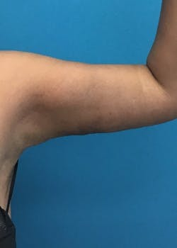 Arm Lift Gallery - Patient 46612881 - Image 4