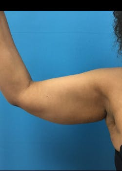 Arm Lift Gallery - Patient 46612952 - Image 1