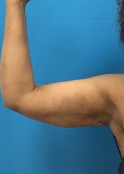 Arm Lift Gallery - Patient 46612952 - Image 2