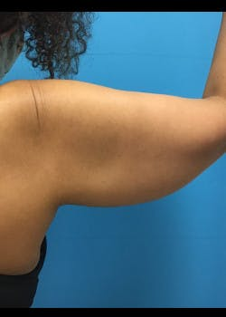 Arm Lift Gallery - Patient 46612952 - Image 3
