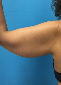 Arm Lift Gallery - Patient 46612952 - Image 5