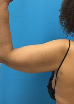 Arm Lift Gallery - Patient 46612952 - Image 6