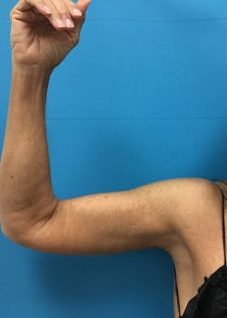 Arm Lift Gallery - Patient 46612977 - Image 2