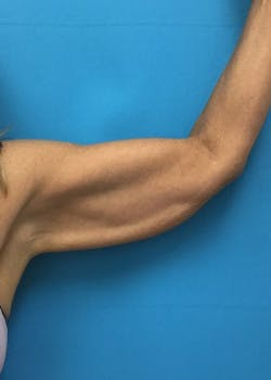 Arm Lift Gallery - Patient 46612977 - Image 3