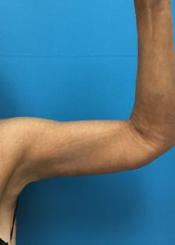 Arm Lift Gallery - Patient 46612977 - Image 4
