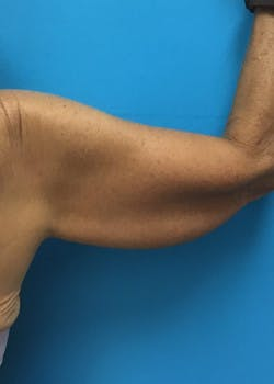 Arm Lift Gallery - Patient 46612977 - Image 5