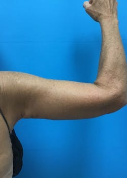 Arm Lift Gallery - Patient 46612977 - Image 6