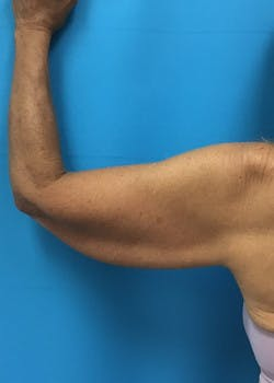 Arm Lift Gallery - Patient 46612977 - Image 7