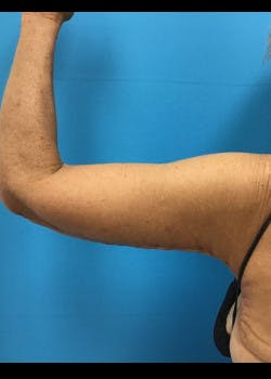 Arm Lift Gallery - Patient 46612977 - Image 8