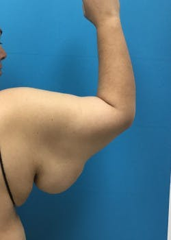 Arm Lift Gallery - Patient 46612979 - Image 1