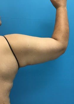 Arm Lift Gallery - Patient 46612979 - Image 2