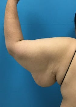 Arm Lift Gallery - Patient 46612979 - Image 3