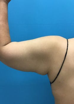 Arm Lift Gallery - Patient 46612979 - Image 4