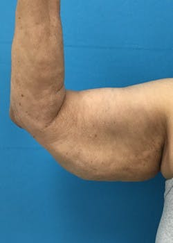 Arm Lift Gallery - Patient 46612981 - Image 1