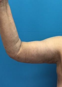 Arm Lift Gallery - Patient 46612981 - Image 2