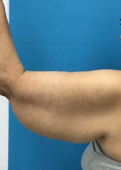Arm Lift Gallery - Patient 46612981 - Image 3