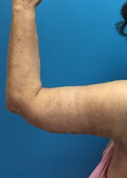 Arm Lift Gallery - Patient 46612981 - Image 4