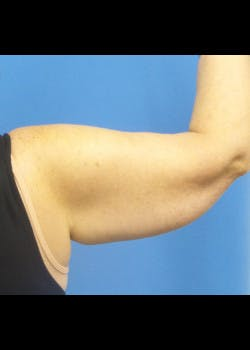Arm Lift Gallery - Patient 46612982 - Image 1