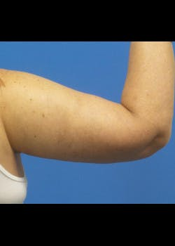 Arm Lift Gallery - Patient 46612982 - Image 2