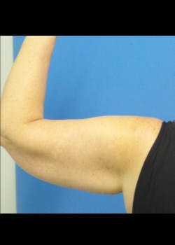 Arm Lift Gallery - Patient 46612982 - Image 3