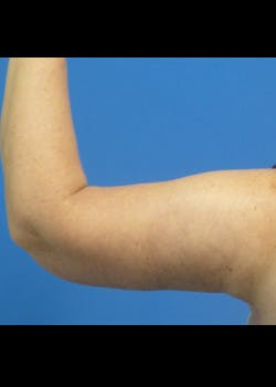 Arm Lift Gallery - Patient 46612982 - Image 4