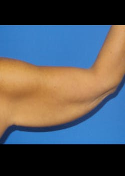 Arm Lift Gallery - Patient 46612983 - Image 1