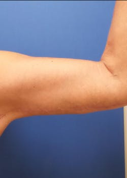 Arm Lift Gallery - Patient 46612983 - Image 2