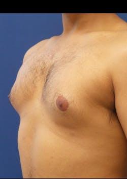 Gynecomastia Gallery - Patient 46612997 - Image 1